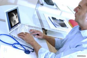 radiotherapie stéréotaxique